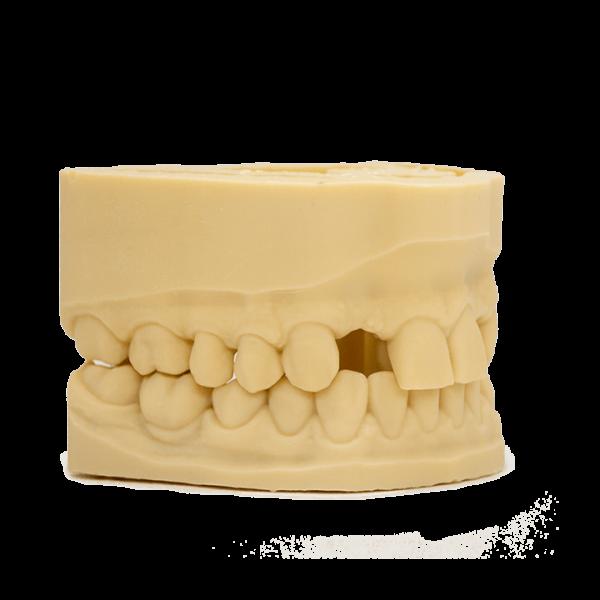 AmeraLabs 3D printing resin dental models